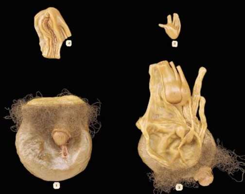 Pictures of human hermaphrodites organs