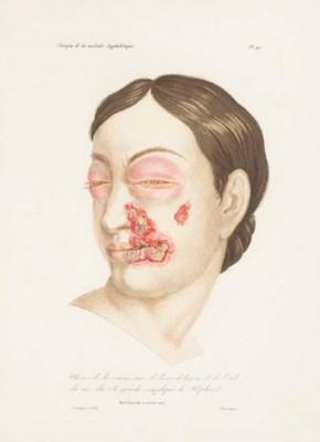 DEVERGIE, Marie Nicolas (1784-