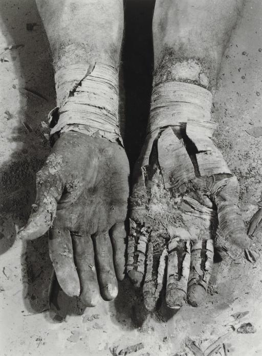Die Befreiung der Finger, from Errinnerungsspur, 1977-1979
