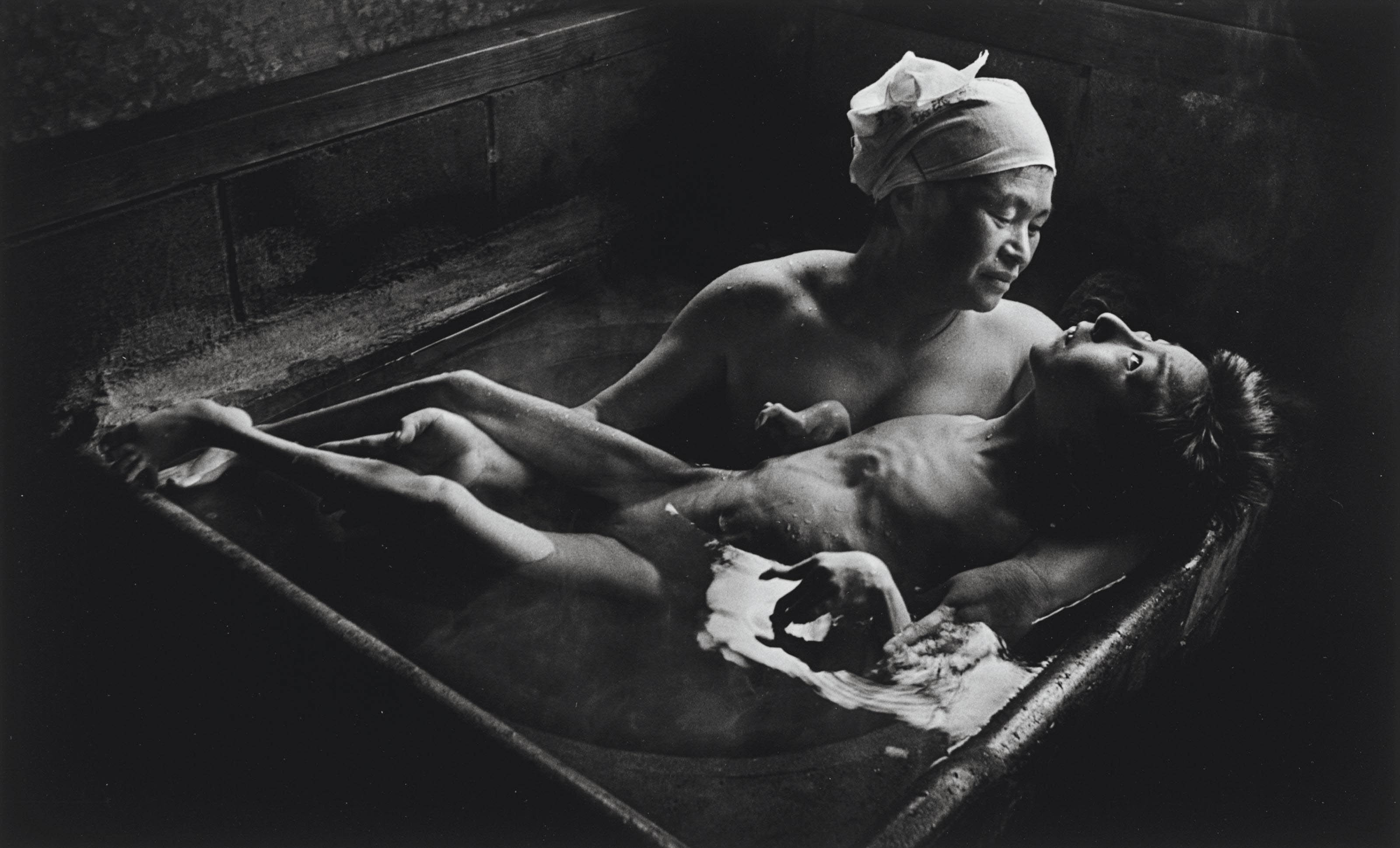 Tomoko in her Bath, Minamata, Japan, 1972