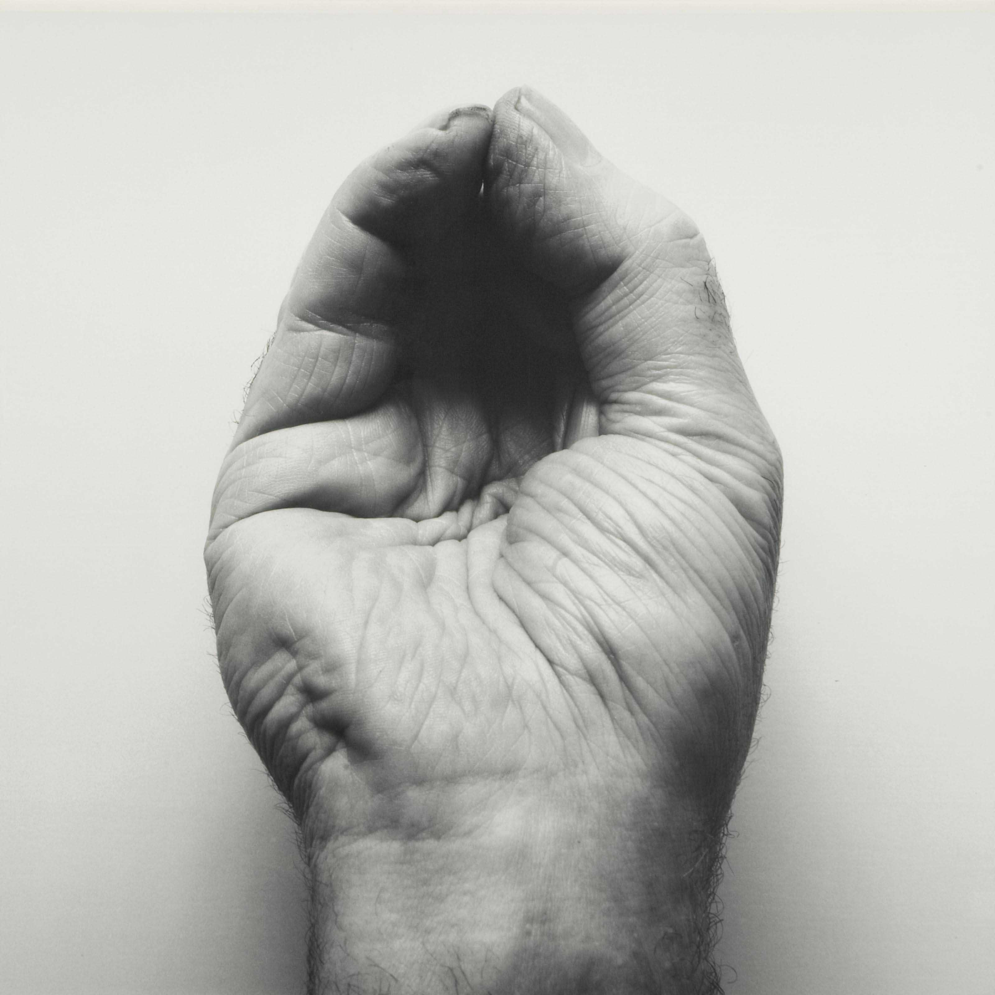 Self-Portrait (Front Hand, Pinched), 1988