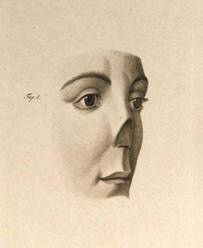 GRAEFE, Carl Ferdinand von (17