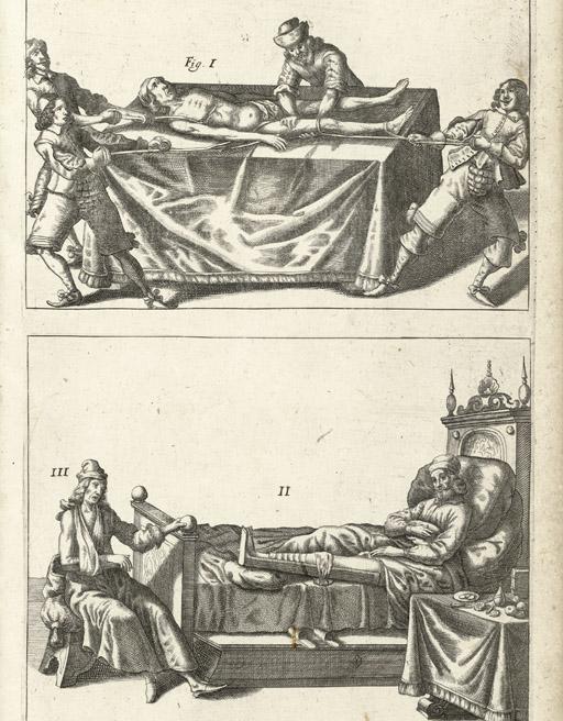 SCULTETES, Johannes (1595-1645). Cheiroplotheke, seu armamentarium chirurgicum. Ulm: Balthasar Khnen, 1655.