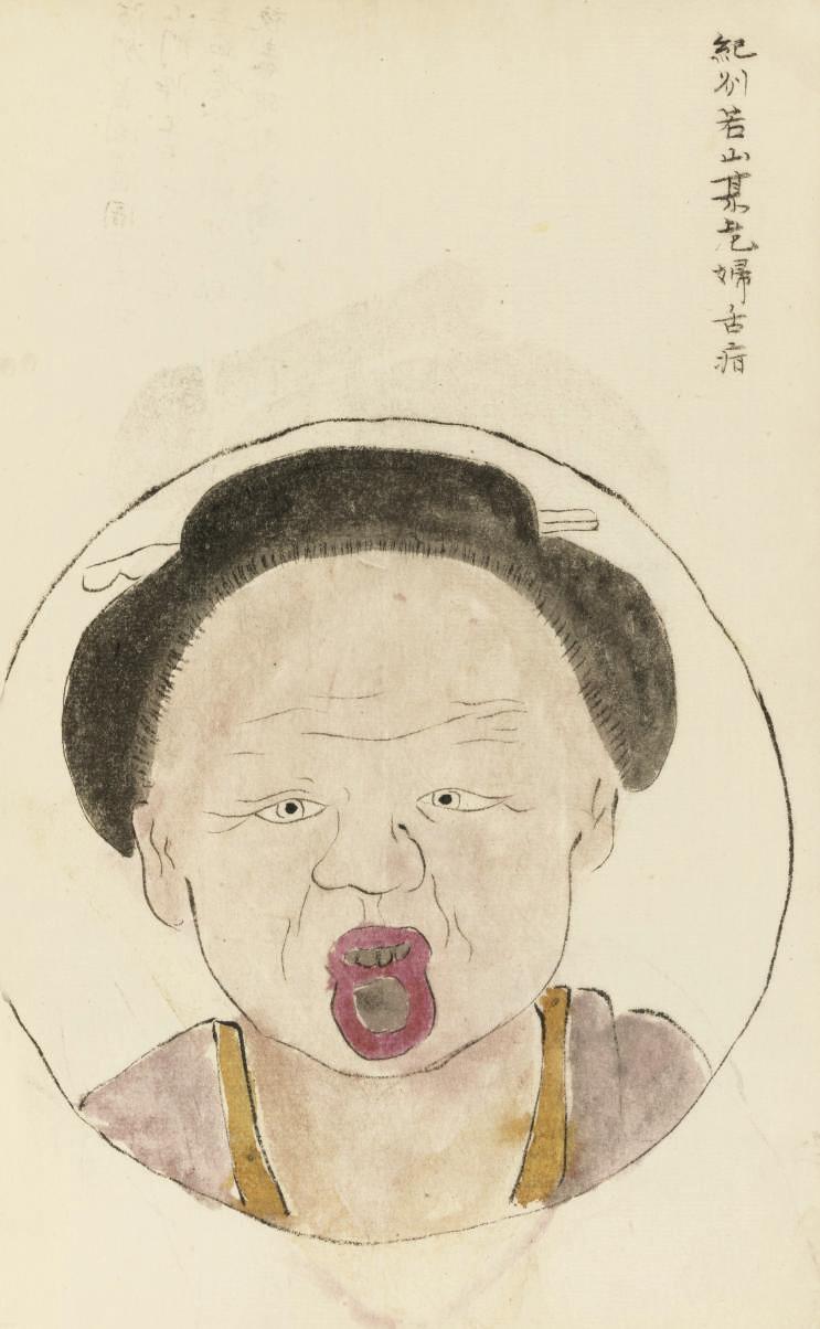 HANAOKA, Seishu Zuiken (1760-1