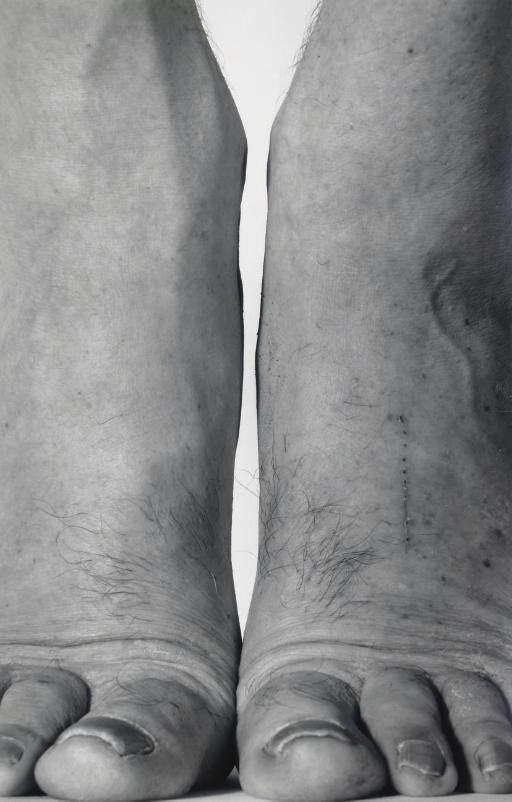Self Portrait (Feet Frontal), 1984