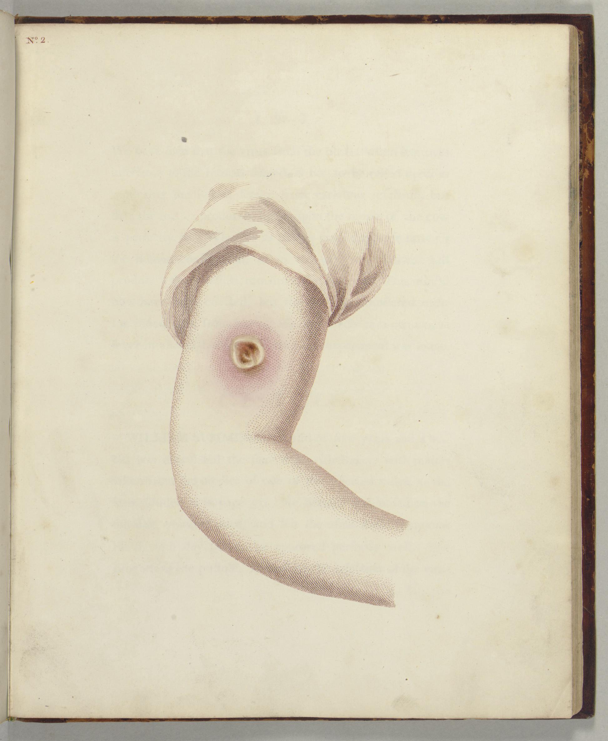 JENNER, Edward (1749-1823). An