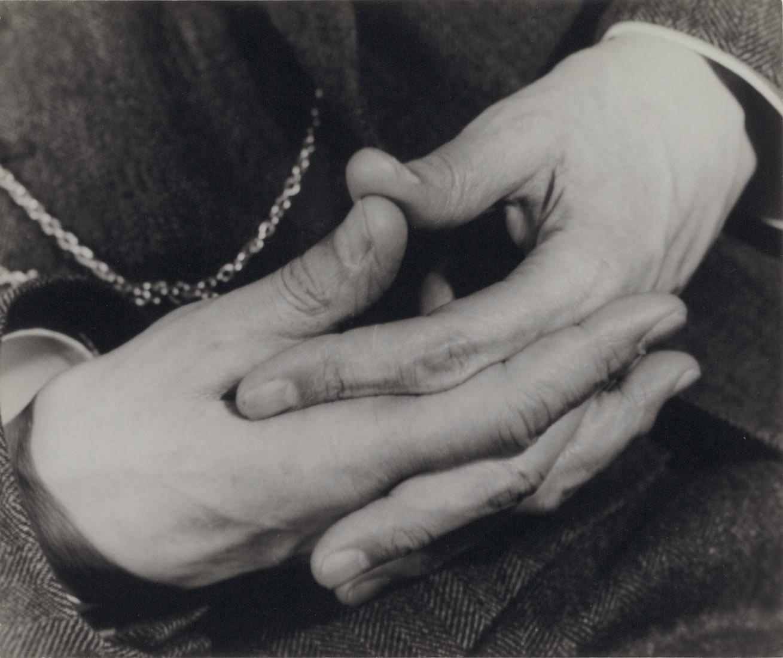 Dr. Parkes Weber, Hände, c. 1933