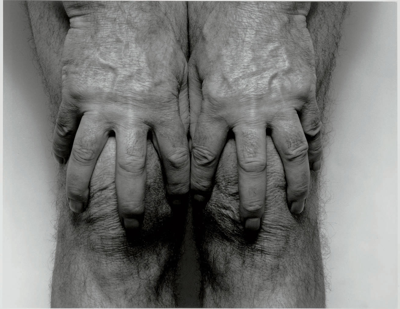 Self Portrait, Hands Spread on Knees, 1985