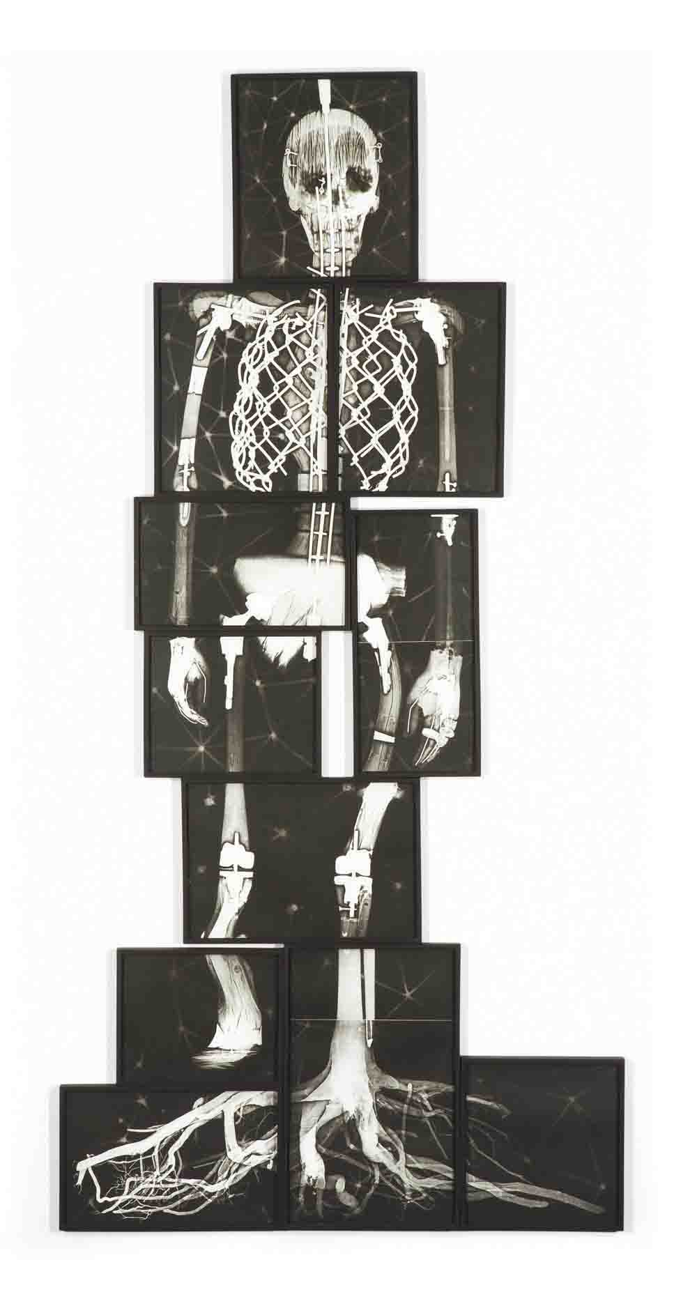 Missing Link (X-Ray)