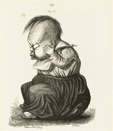 VIRCHOW, Rudolf (1821-1902).