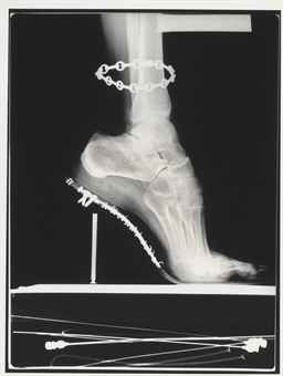 X-ray, French Vogue, Paris, 1994